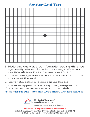 image regarding Printable Amsler Grid identify Amsler Grid Examine Fill On the net, Printable, Fillable, Blank