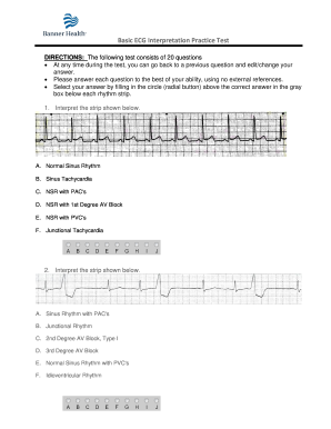 photograph relating to Printable Ekg Strips named Ekg Train Formpdffillercom - Fill On line, Printable