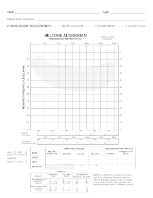 pure tone audiometry interpretation pdf